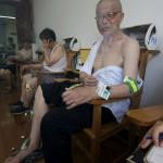 Voici un traitement d'acupuncture avec moxibustion. Le moxa dégage beaucoup de fumée!